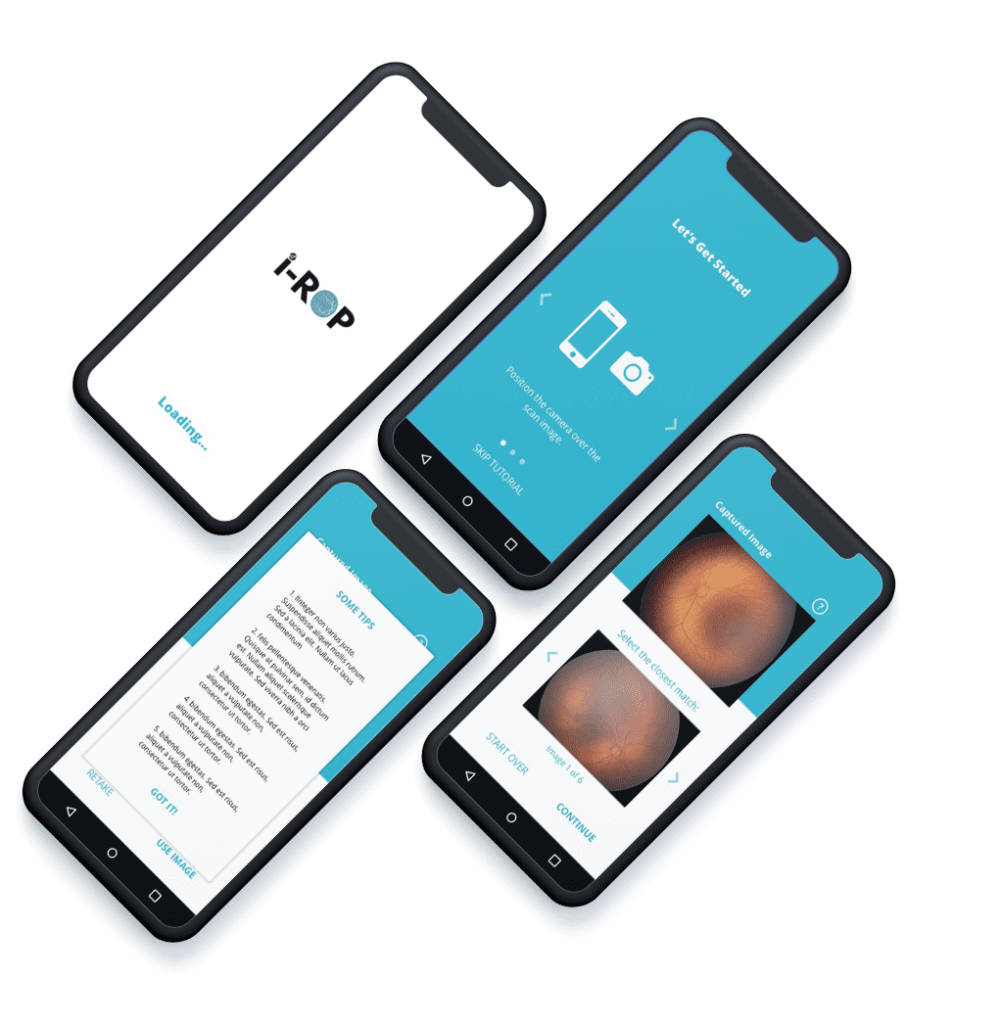 iRop Mobile Application on iPhone Xs